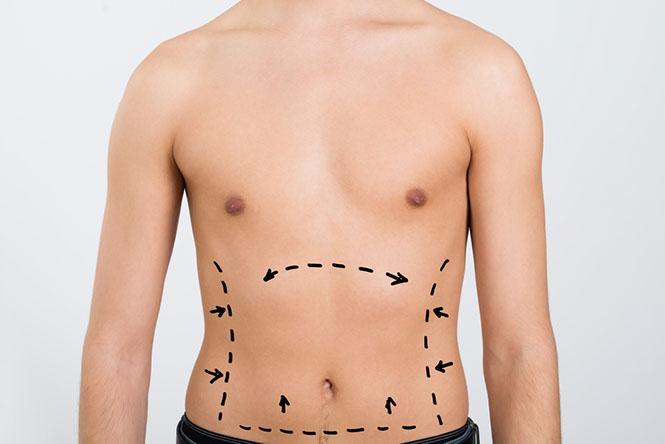 intralipoterapia reducir grasa localizada